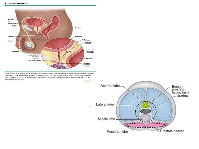 Urology Lecture 3