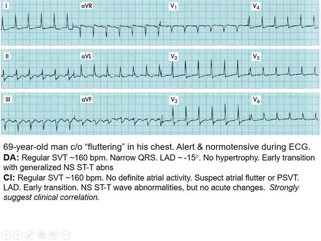 EKG Part II 10/19